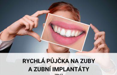 Rychlá půjčka na zuby a zubní implantáty až 750000 Kč